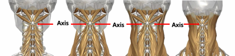 axis-1