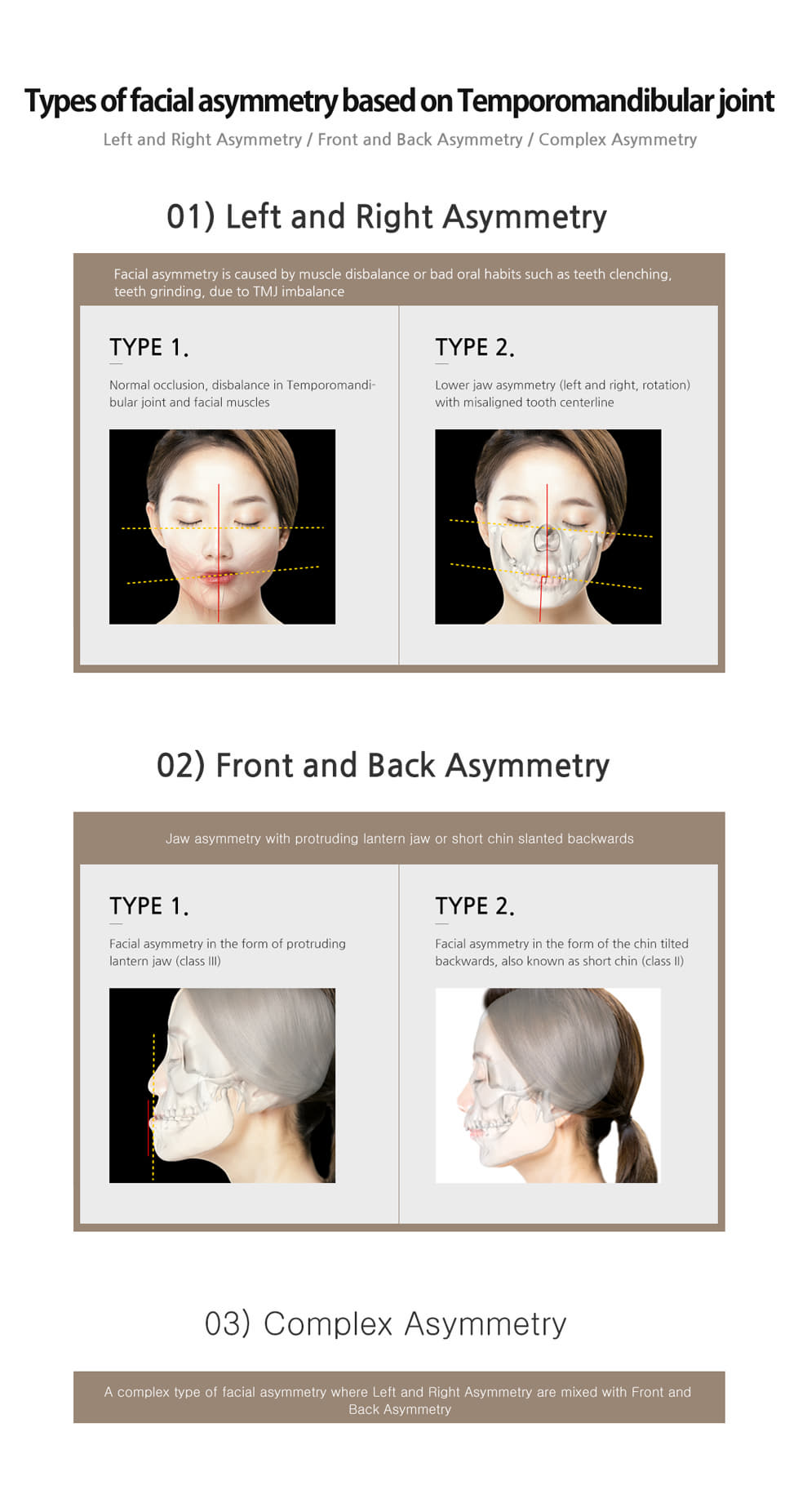 facial asymmetrycial asymmetry